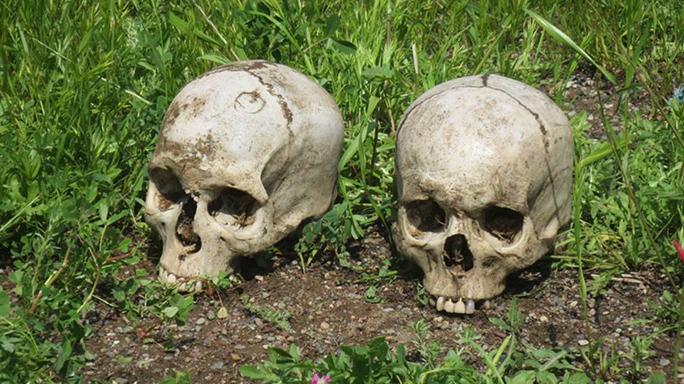 Mosul Medic Nik Frey skulls
